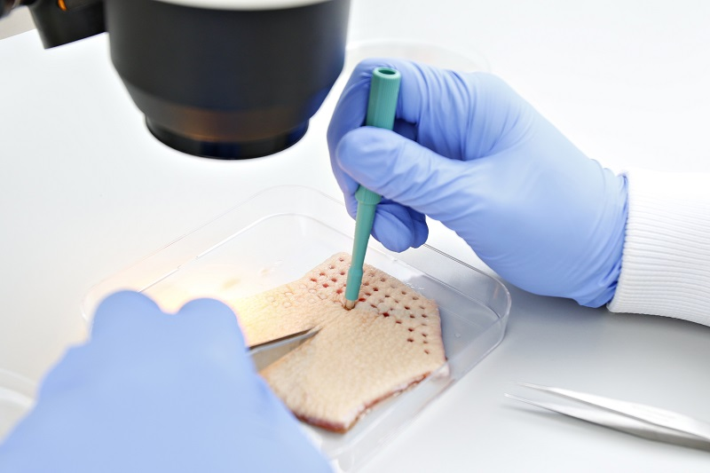 A researcher taking punch biopsies from human skin in a dish
