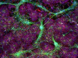 iPSCs-NutriStem-iMatrix-511-neuronal-cells