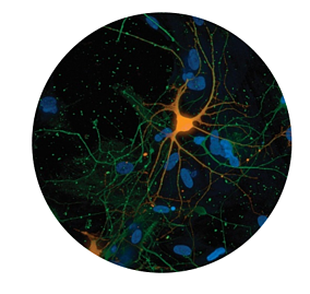 SynFyre Neuronal Cells Satined using ICC