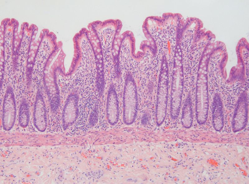 Healthy Intestinal Epithelium Histology